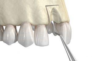 bone grafting in upper jaw