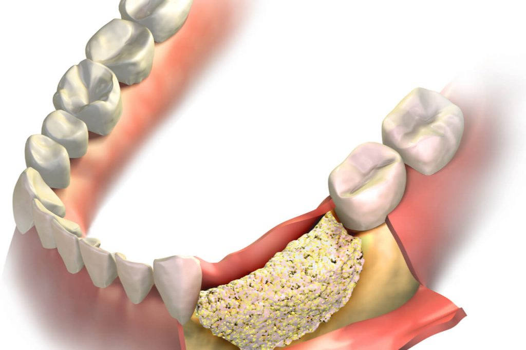 what to expect after dental bone graft