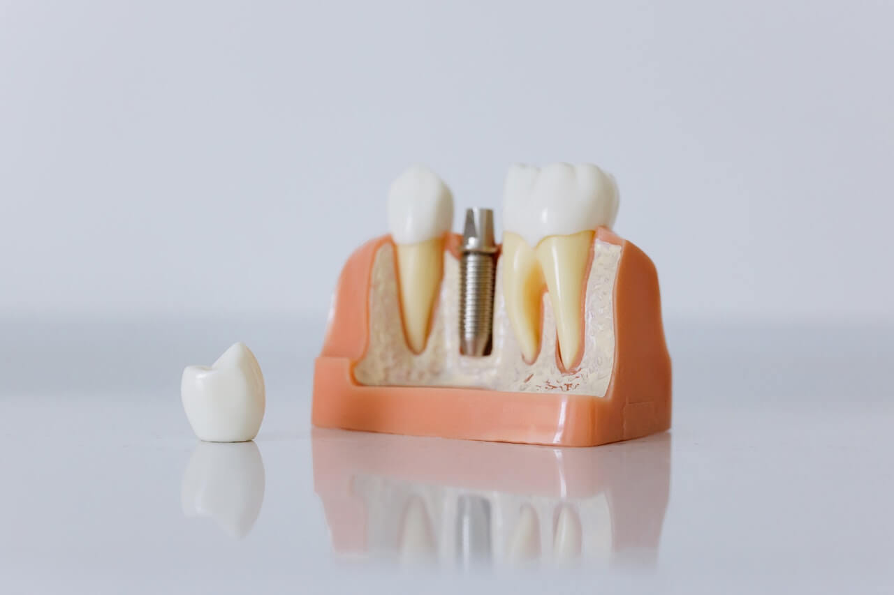 dental abutment as component for implants