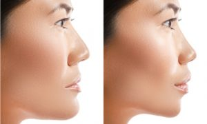 Before and after corrective jaw surgery. See the difference.