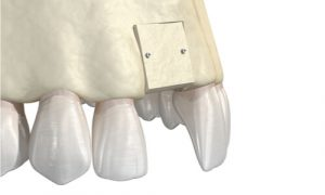 Bone grafting is necessary if the patient does not have sufficient bone to support implants.