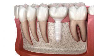 A dental implant made of ceramic material.